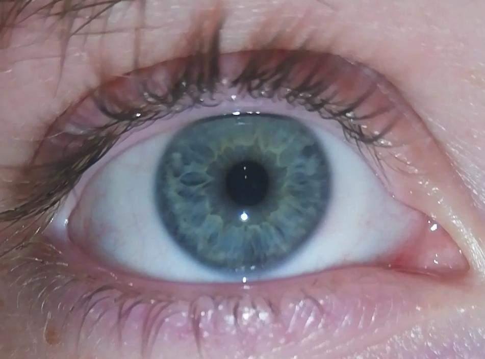 Blaue was augen bedeuten Was Augenfarben