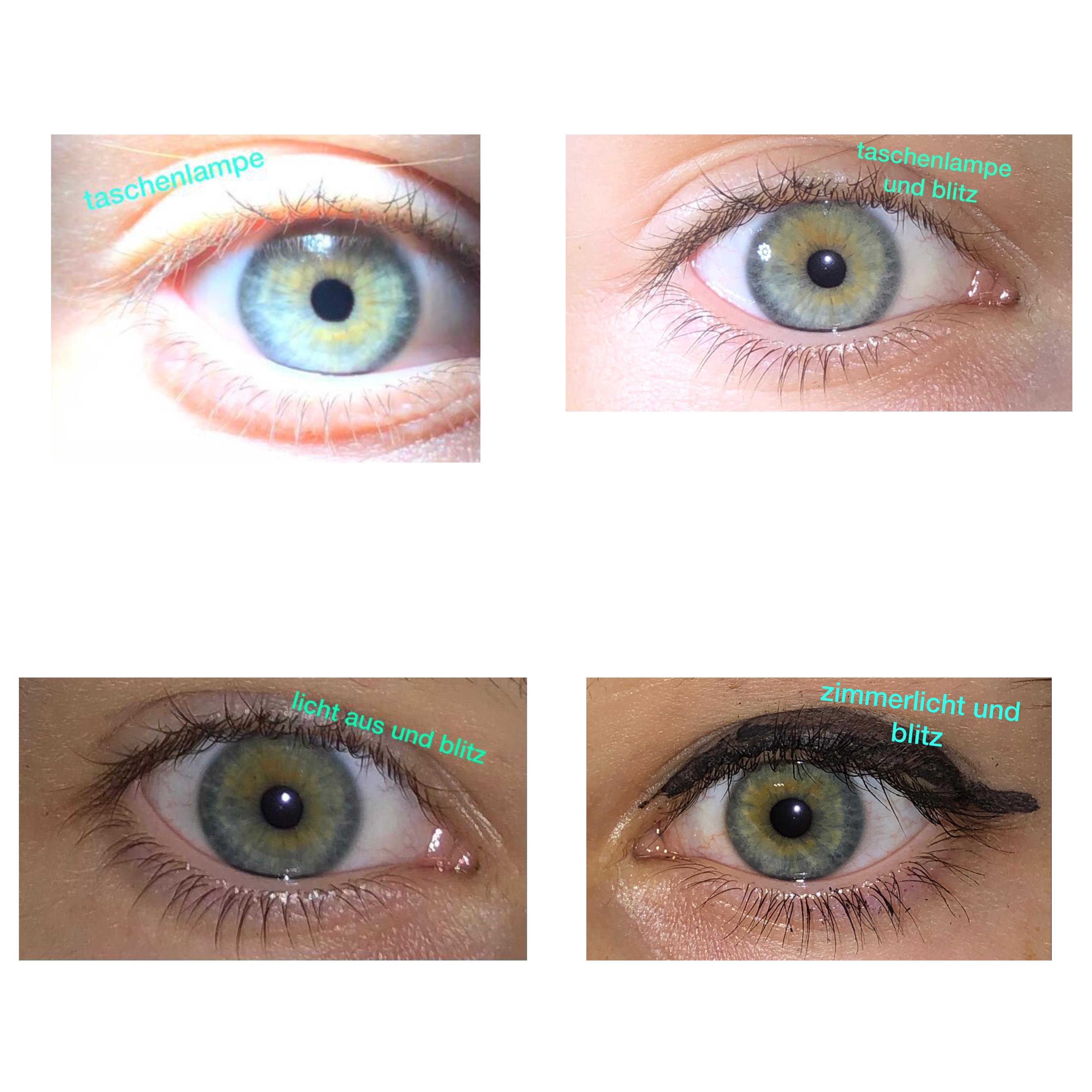 Augenfarbe Wechselt