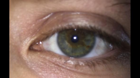 Mein Auge - (Augen, Farbe)