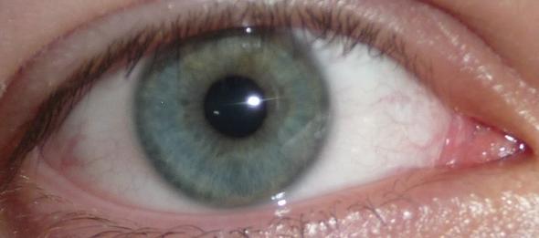 ............. - (Augen)