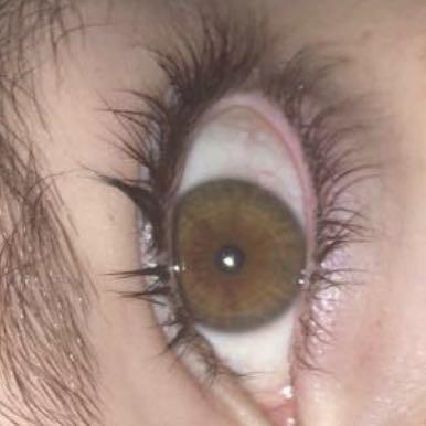 Kakacsbaoi - (Augen, Farbe, Augenarzt)
