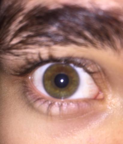 Foto - (Augen, Augenfarbe)