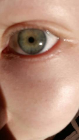 Ungeschminkt in der Sonne - (Augen, Augenfarbe)