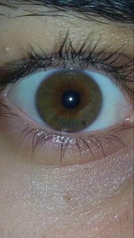 Auge - (Augenfarbe, iris)