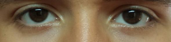 Augenform - (Augen, augenform)