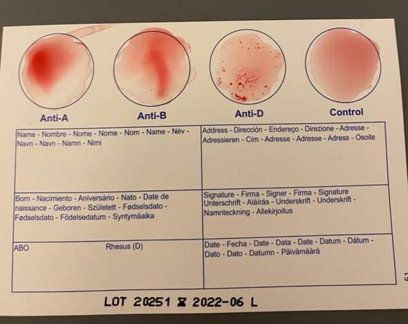 Blutgruppe 0 D