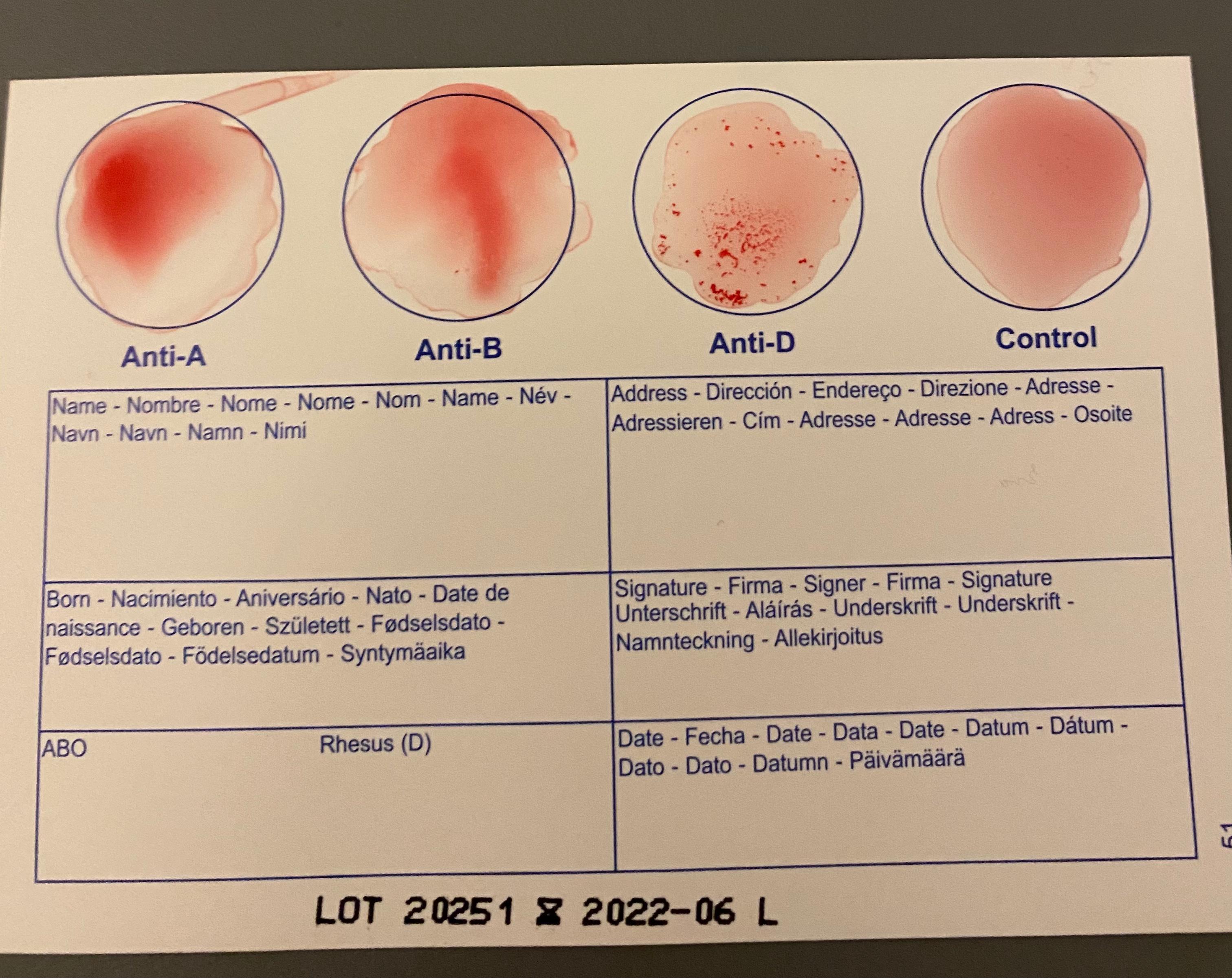 Wie Entsteht Blutgruppe 0