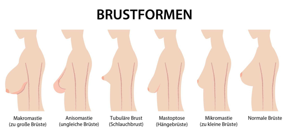 Welche Brustform findet ihr bei den Mädchen am schönsten? (Umfrage, Abstimmung, Brust)