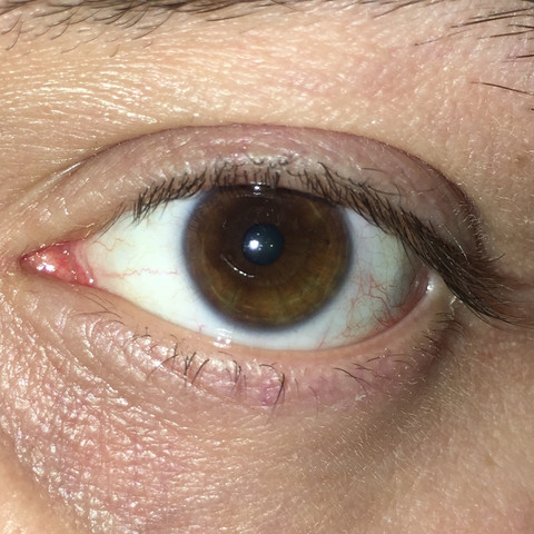 - (Augenfarbe, Farbe der augen)