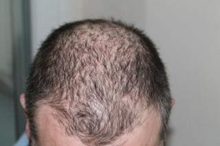 Welche Frisur schneiden bei dünnem Haar mit viel Grauanteil?