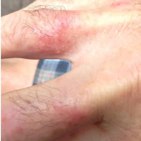 Bild 2 - (Gesundheit, Hautkrankheit)