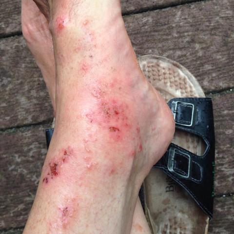 Bild 3 - (Gesundheit, Hautkrankheit)
