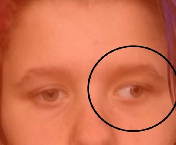 Welche Krankheit kann eine Fehlstellung des Auges bewirken?