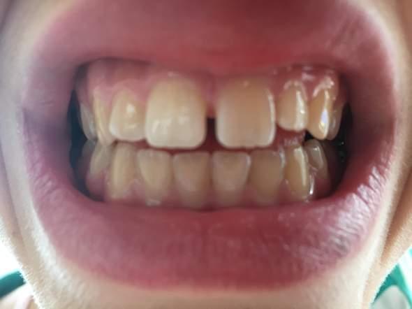 - (Gesundheit und Medizin, Zähne, Zahnspange)