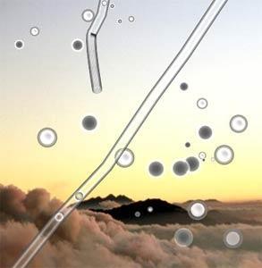 Bilduntertitel eingeben... - (Glaskörpertrübung, mouches volantes, schwarze Punkte Auge)