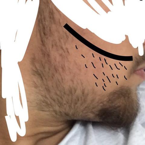 Die markierte Stelle  - (Männer, Bart, Herren)