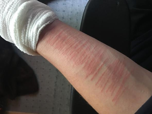 Bild - (Verletzung, Heilungsprozess)
