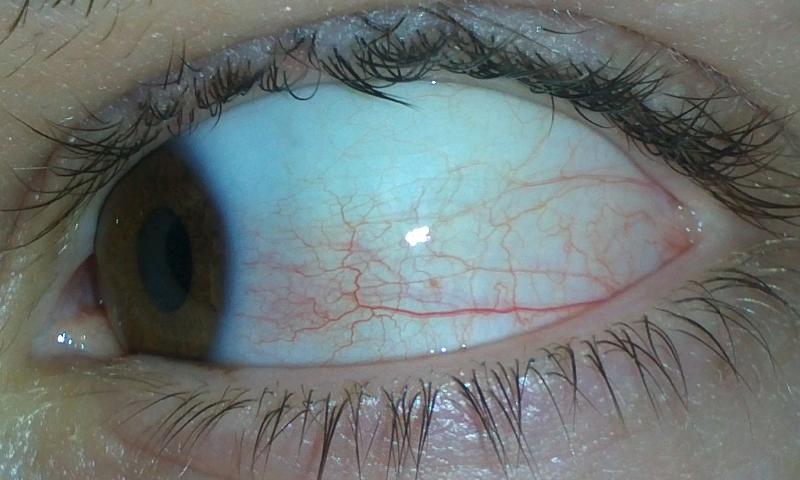 WICHTIG! Mein Auge ist gerötet und tut weh. (Arzt, Augen