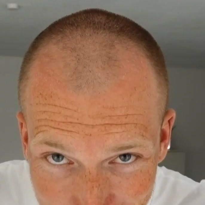 Mann mit glatze attraktiver Attraktive Glatze?!