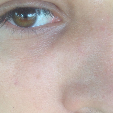 Bild1 - (Haut, Creme, Microdermabrasion)