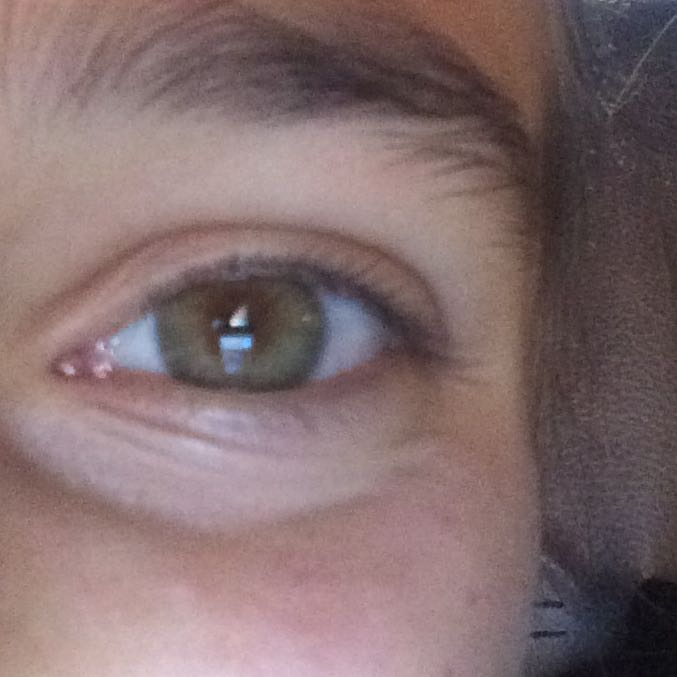 Wie Bekomme Ich Augenringe Weg