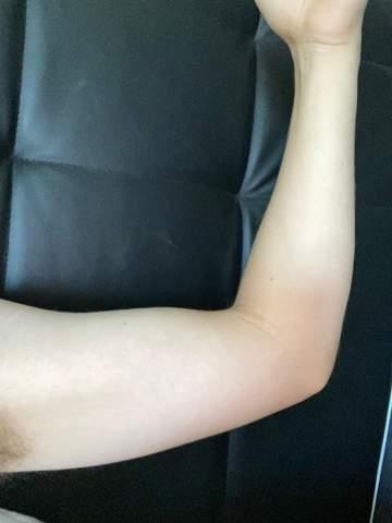 Wie Bekomme ich meine Arme dünner?