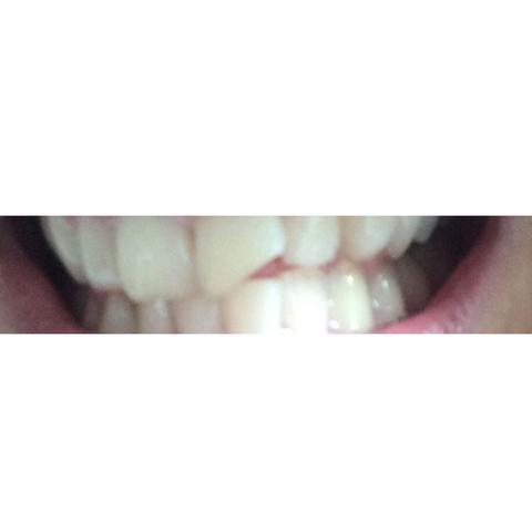 habe gelbe zähne