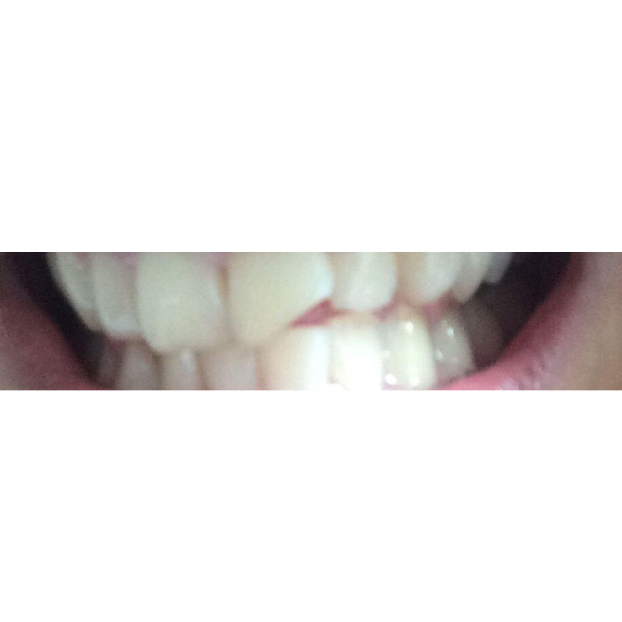 Wie bekomme ich meine Zähne wieder weiß (habe gelbe Zähne