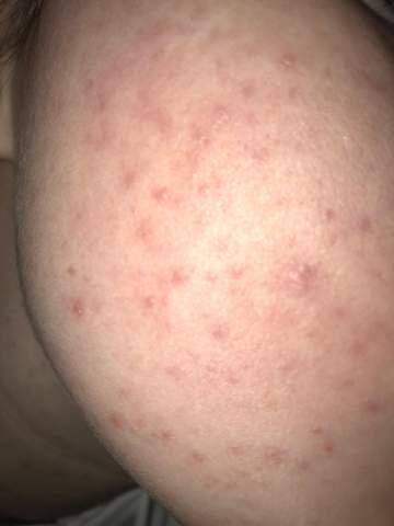Wie bekommt man diese roten Flecken weg?