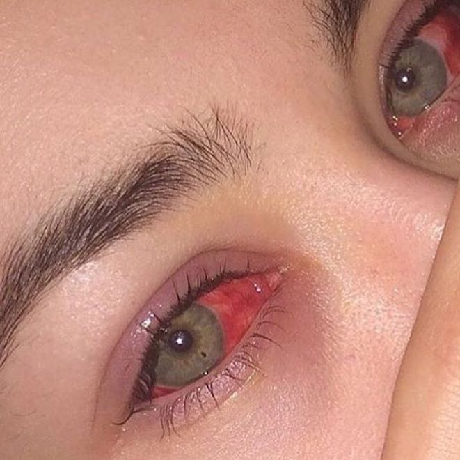 Wie bekommt man komplett rote Augen? (Gesundheit, Körper)
