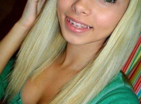 Wie finden Jungs feste Zahnspangen bei Mädchen? (Frauen