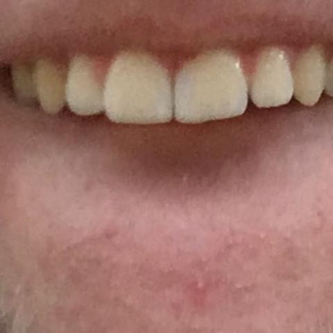 Zahnlücke was tun vorne gegen Die besten