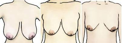 Wie findet ihr hängende Brüste?