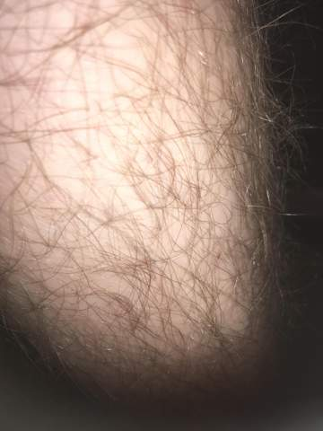 Warum Werden Meine Beine Nicht Braun