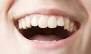Zähne - (Gesundheit, Zähne, Aussehen)
