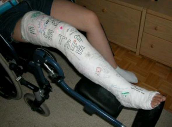 Wie gehe ich am besten mit Krücken? (Beine, Gips)