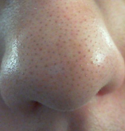 Große Poren Auf Der Nase