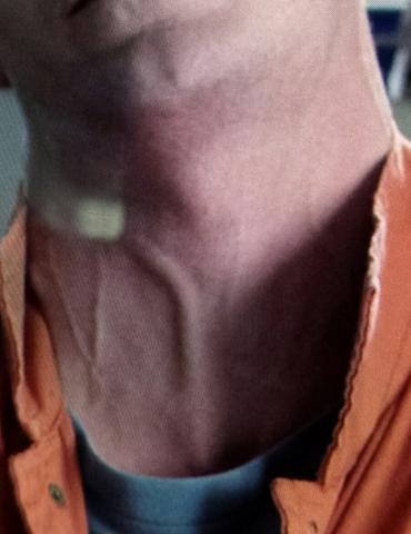 Wie heißen diese Halsvenen/arterien? (Körper, Blut, Hals)