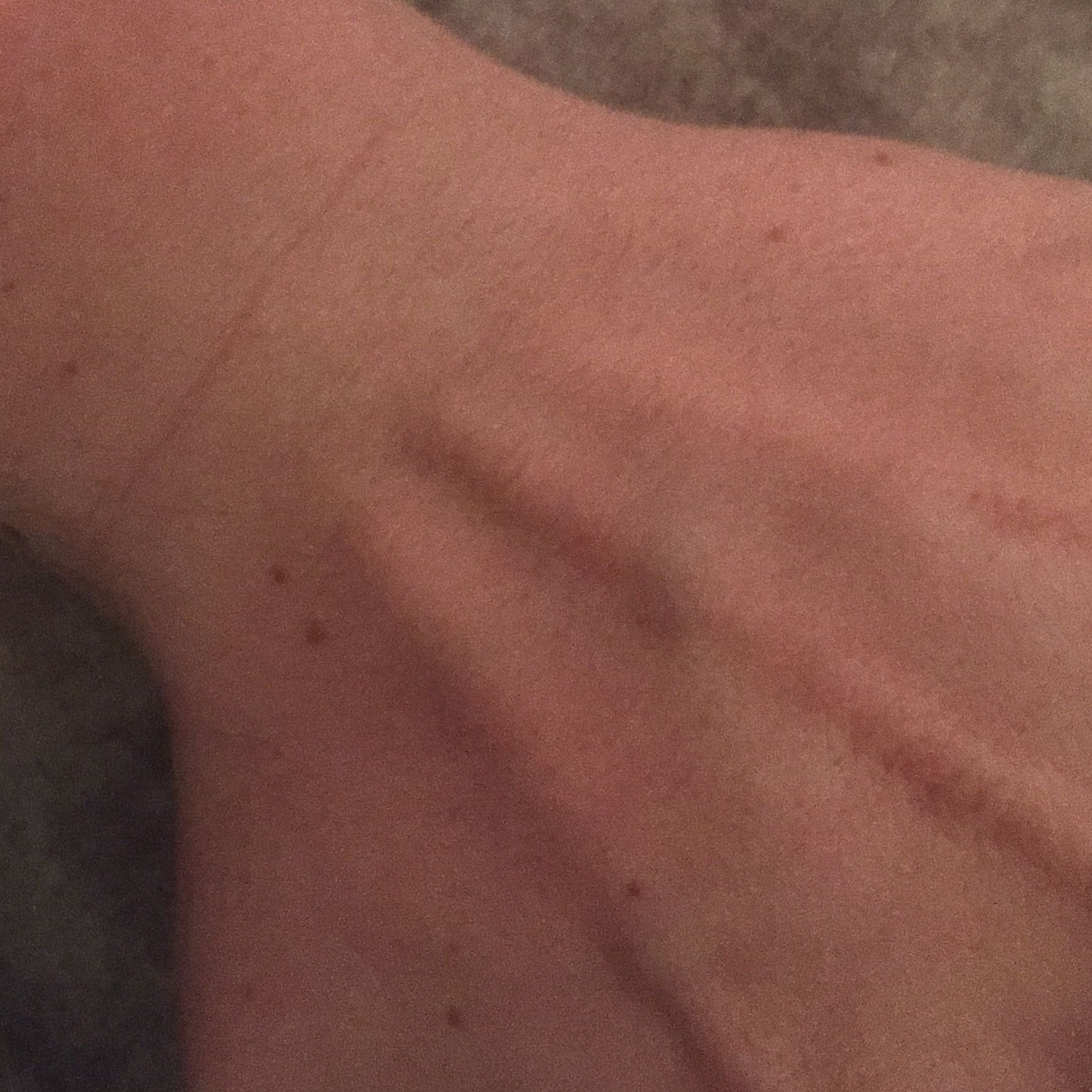 Wie heißen diese Knochen (Handgelenk) (Hand)