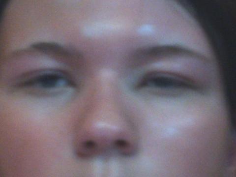 So sieht's aus - (Medizin, Haut, Augen)