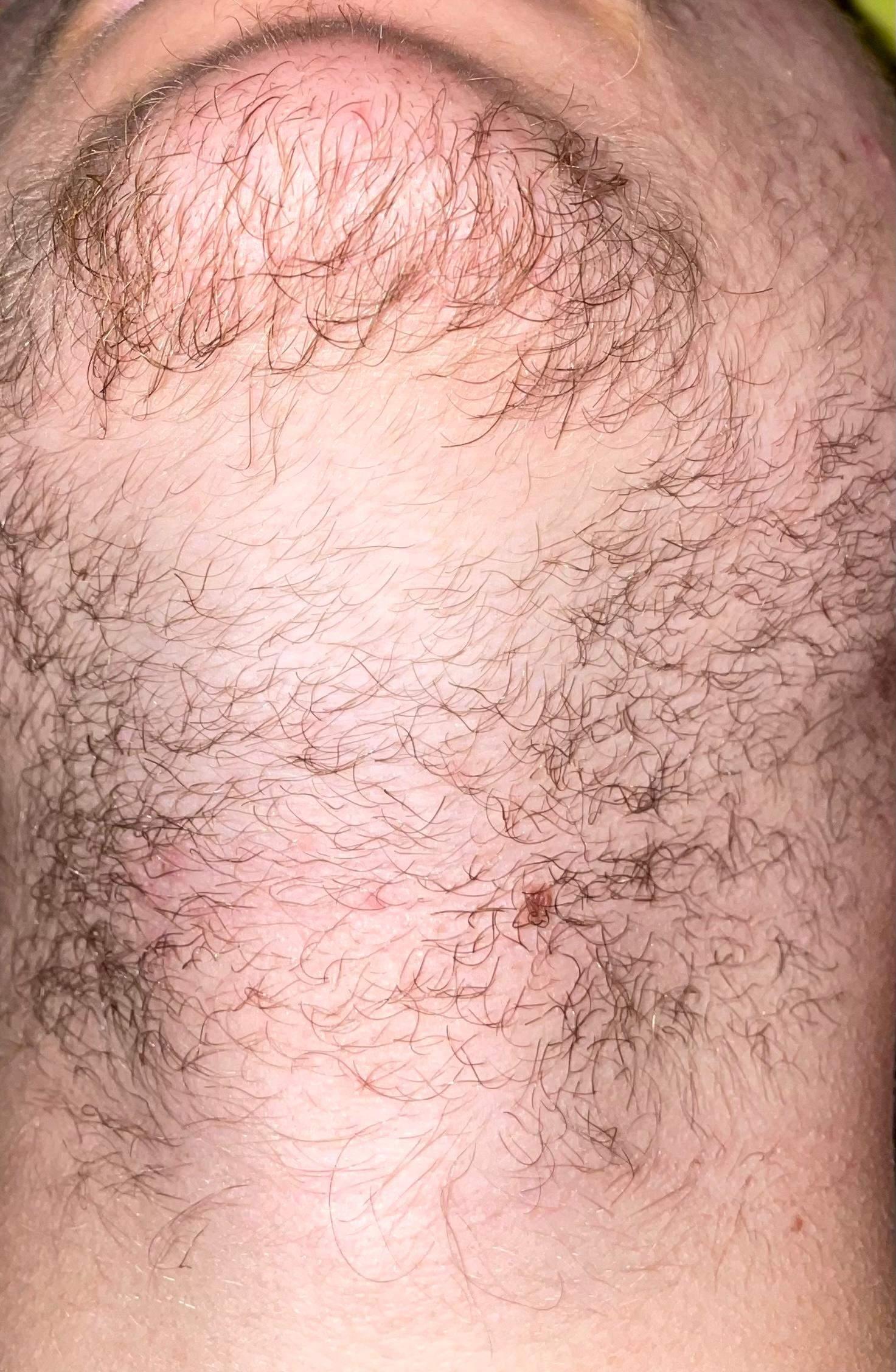Wie kann ich die Lücken in meinem Bart füllen? (Männer