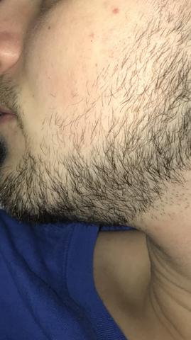 Stärkeren Bartwuchs Bekommen