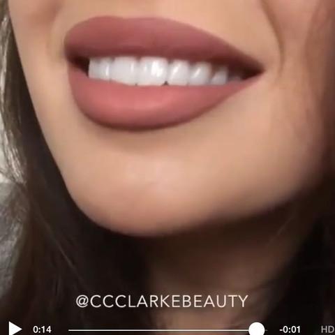 Wie kann man seine Zähne weißer machen lassen? (Beauty