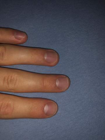 Wie kann man sich Fingernägel abkauen abgewöhnen?