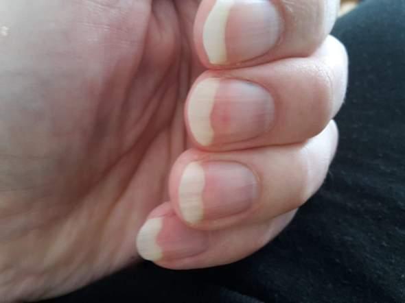 Männer künstliche fingernägel für Künstliche Fingernägel