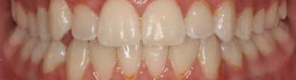 Wie lange bräuchte ich dafür eine Zahnspange?