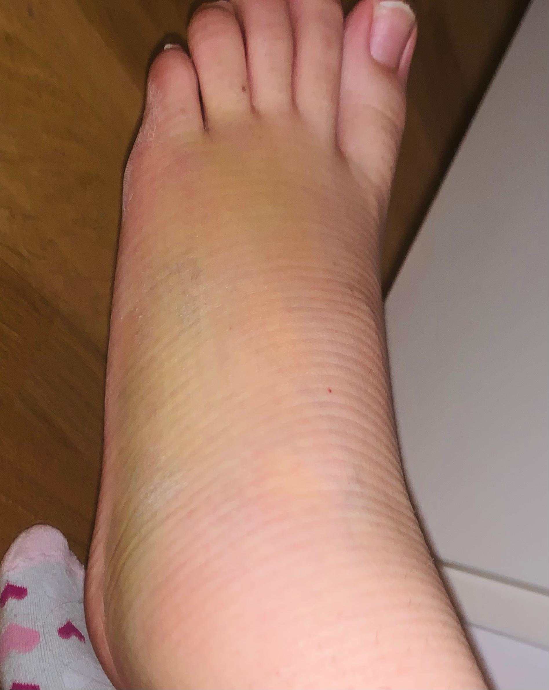 Bänderriss Fuß Wie Lange Krank