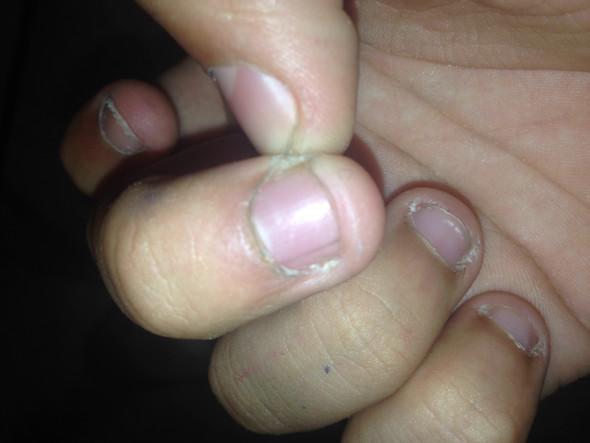 Wie lange dauert es bis so ein fingernagel komplet neu kommt? Der ist ja 5mm-1cm - (Körper, Fingernägel, wachsen)