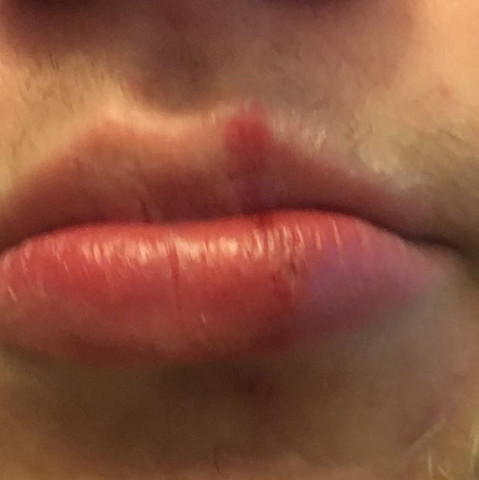 Wie lange dauert herpes lippe