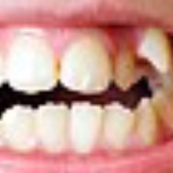 Wie lange muss man bei diesen Zähnen(siehe Bild) eine
